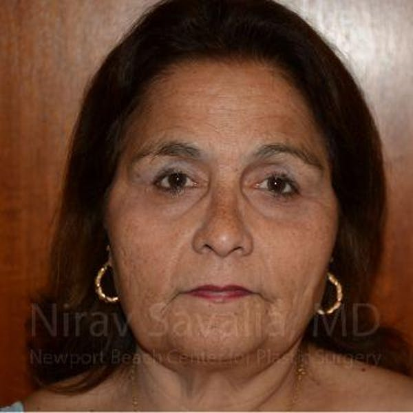Eyelid Surgery Gallery - Patient 1655719 - Image 2