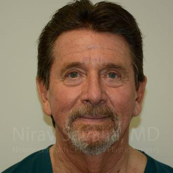 Fat Grafting to Face Gallery - Patient 1655720 - Image 1