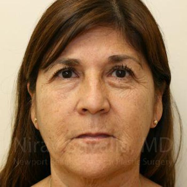 Facelift Gallery - Patient 1655721 - Image 1