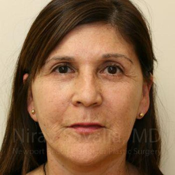 Facelift Gallery - Patient 1655721 - Image 2