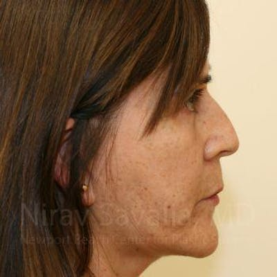 Facelift Gallery - Patient 1655721 - Image 4