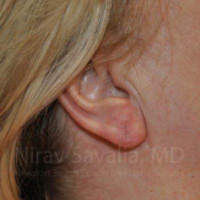 Torn Earlobe Repair / Ear Gauge Repair Gallery - Patient 1655722 - Image 2