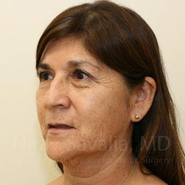 Facelift Gallery - Patient 1655721 - Image 9