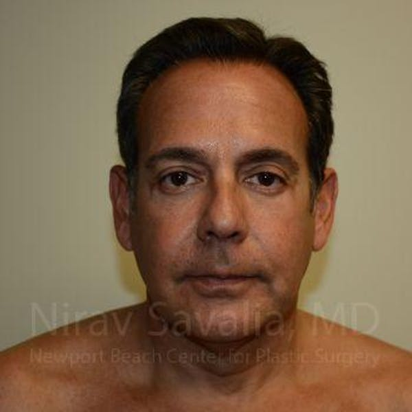 Eyelid Surgery Gallery - Patient 1655723 - Image 2