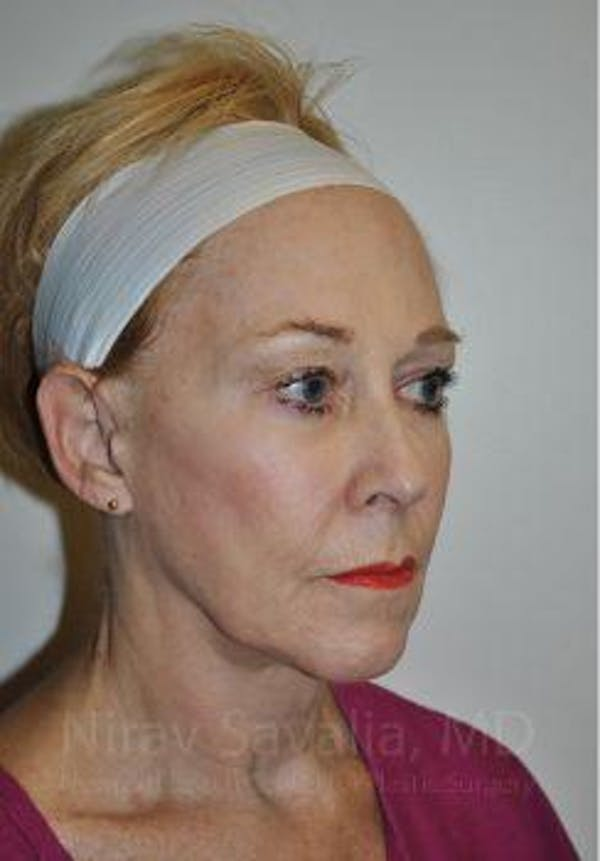 Fat Grafting to Face Gallery - Patient 1655725 - Image 1