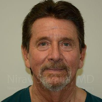 Facelift Gallery - Patient 1655726 - Image 1