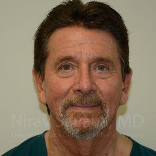 Facelift Gallery - Patient 1655726 - Image 1