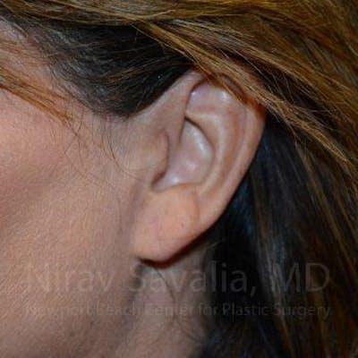 Torn Earlobe Repair / Ear Gauge Repair Gallery - Patient 1655724 - Image 2
