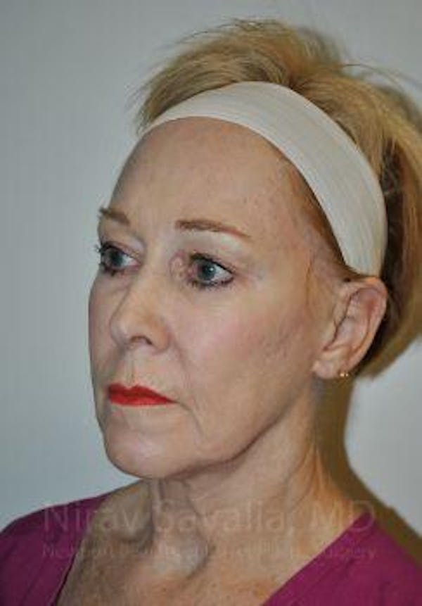 Fat Grafting to Face Gallery - Patient 1655725 - Image 3