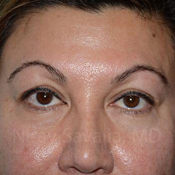 Eyelid Surgery Gallery - Patient 1655728 - Image 1