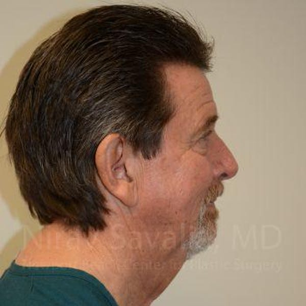Facelift Gallery - Patient 1655726 - Image 3