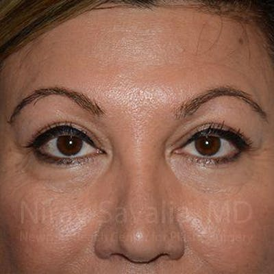 Eyelid Surgery Gallery - Patient 1655728 - Image 2