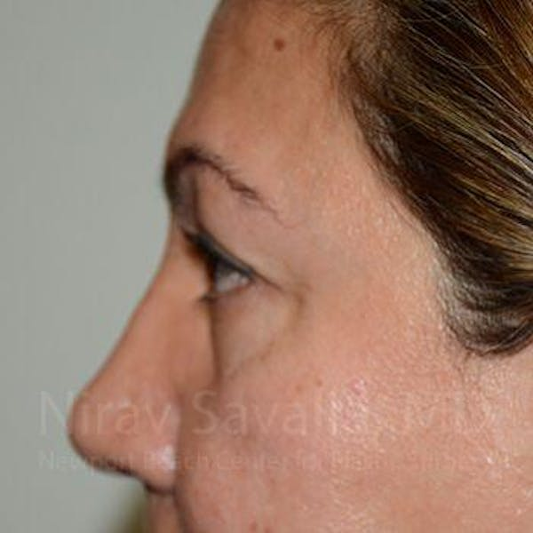 Eyelid Surgery Gallery - Patient 1655728 - Image 3