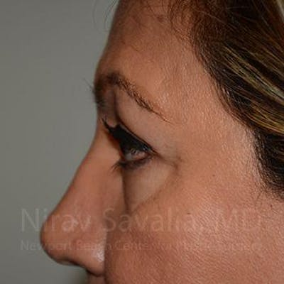 Eyelid Surgery Gallery - Patient 1655728 - Image 4