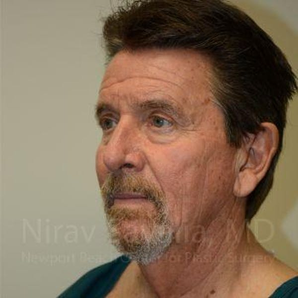 Facelift Gallery - Patient 1655726 - Image 7