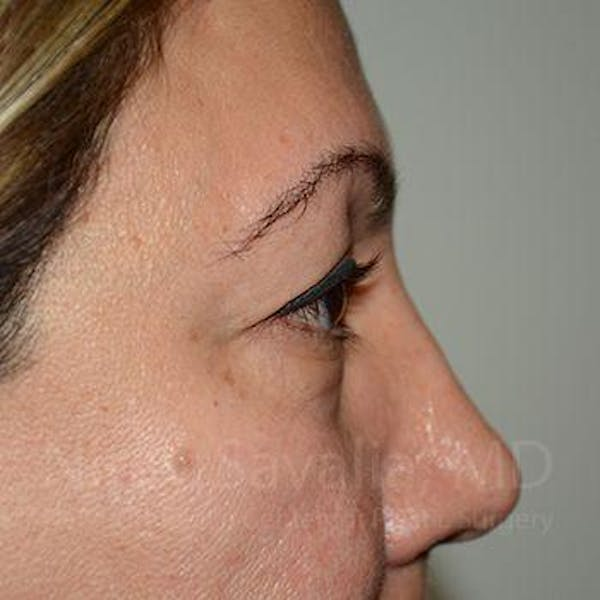 Eyelid Surgery Gallery - Patient 1655728 - Image 5