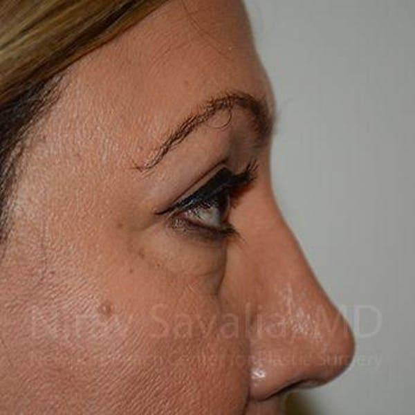 Eyelid Surgery Gallery - Patient 1655728 - Image 6