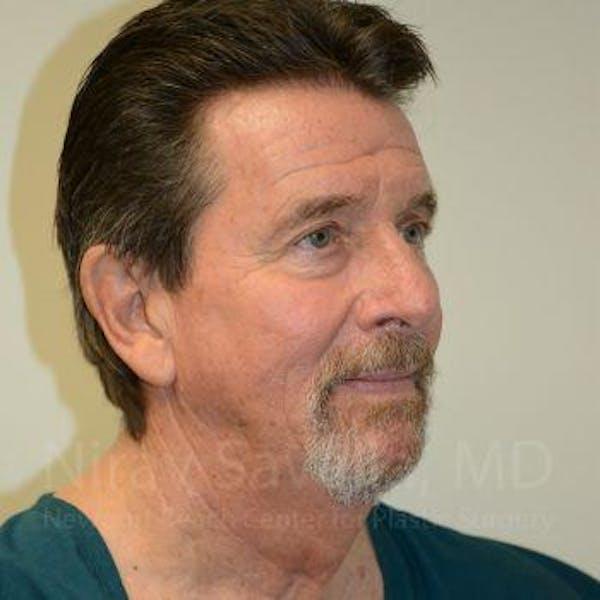 Facelift Gallery - Patient 1655726 - Image 9