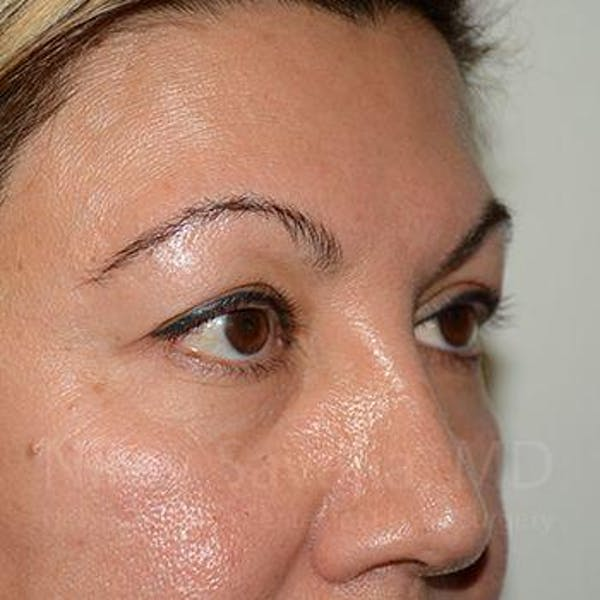 Eyelid Surgery Gallery - Patient 1655728 - Image 7