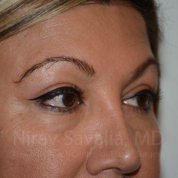 Eyelid Surgery Gallery - Patient 1655728 - Image 8