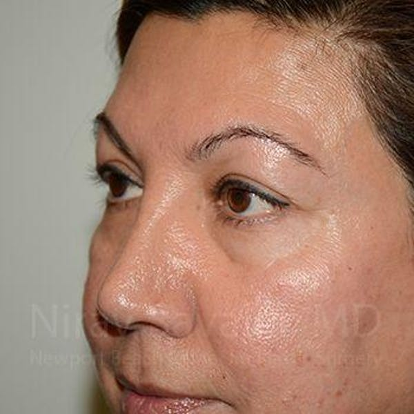 Eyelid Surgery Gallery - Patient 1655728 - Image 9
