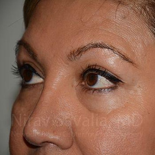 Eyelid Surgery Gallery - Patient 1655728 - Image 10