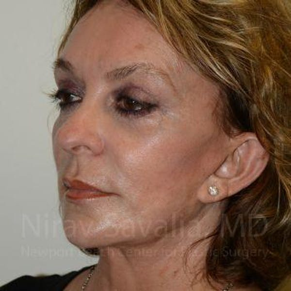 Fat Grafting to Face Gallery - Patient 1655730 - Image 4