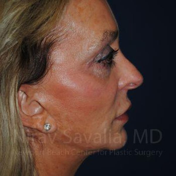 Fat Grafting to Face Gallery - Patient 1655730 - Image 7