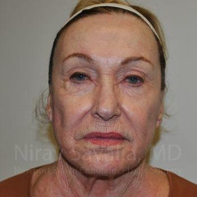 Facelift Gallery - Patient 1655786 - Image 1