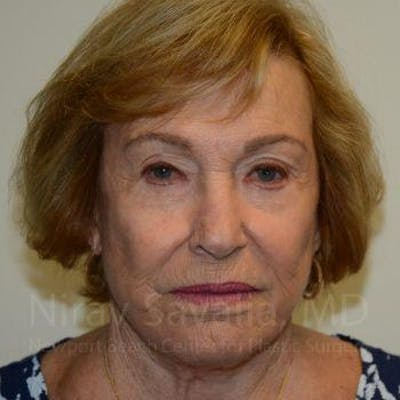 Facelift Gallery - Patient 1655786 - Image 2