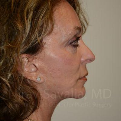 Fat Grafting to Face Gallery - Patient 1655730 - Image 8