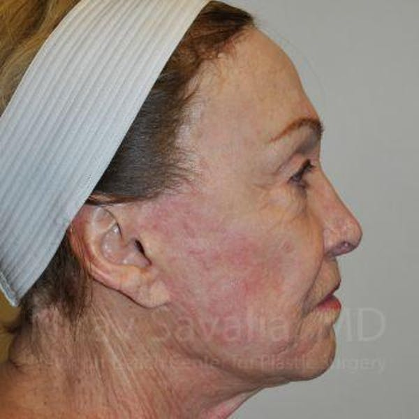 Facelift Gallery - Patient 1655786 - Image 3