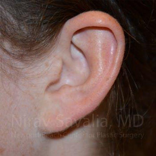 Torn Earlobe Repair / Ear Gauge Repair Gallery - Patient 1655729 - Image 2