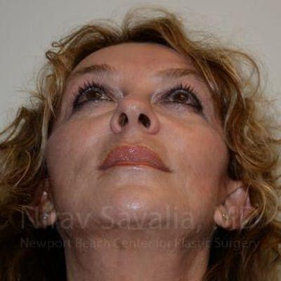 Fat Grafting to Face Gallery - Patient 1655730 - Image 10