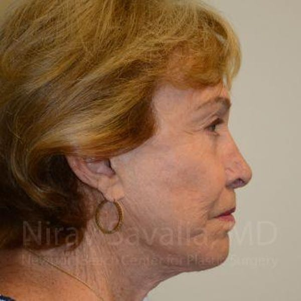 Facelift Gallery - Patient 1655786 - Image 4