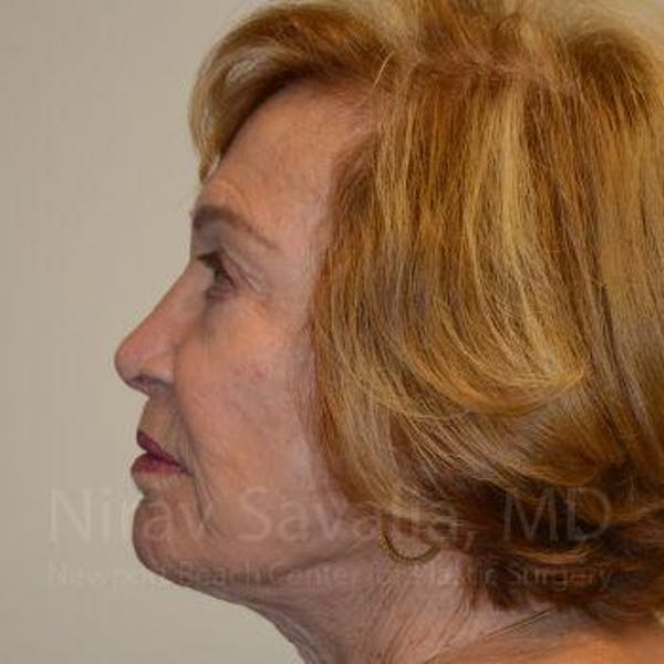 Facelift Gallery - Patient 1655786 - Image 6