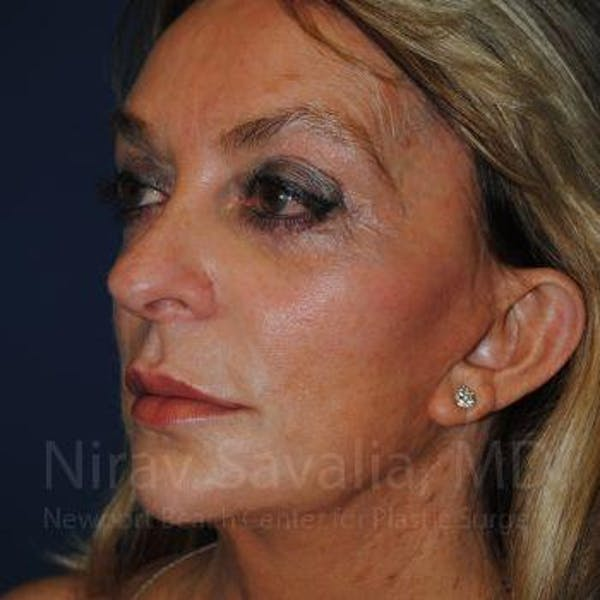 Eyelid Surgery Gallery - Patient 1655789 - Image 3