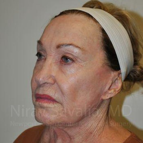 Facelift Gallery - Patient 1655786 - Image 7