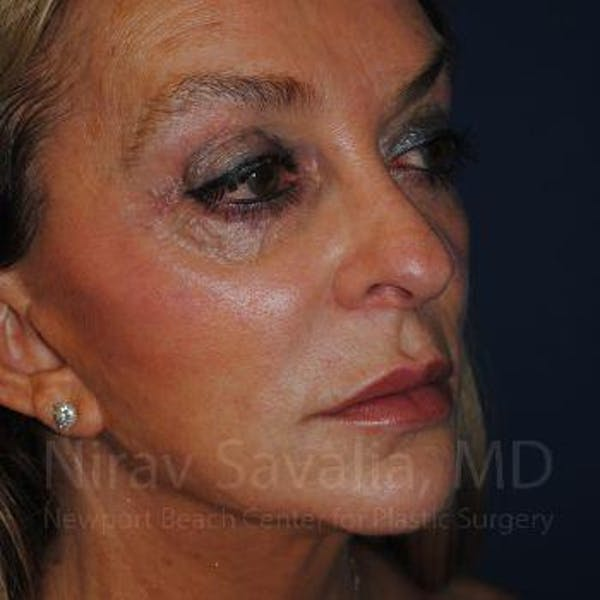 Eyelid Surgery Gallery - Patient 1655789 - Image 5