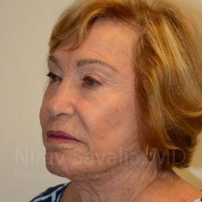 Facelift Gallery - Patient 1655786 - Image 8