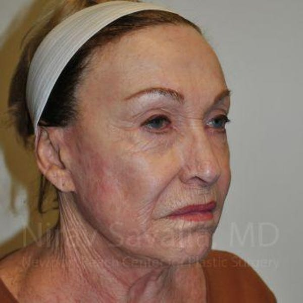 Facelift Gallery - Patient 1655786 - Image 9