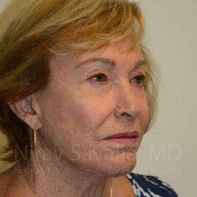 Facelift Gallery - Patient 1655786 - Image 10