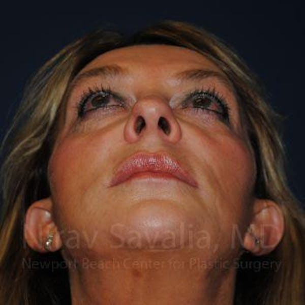 Eyelid Surgery Gallery - Patient 1655789 - Image 9