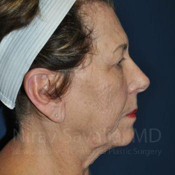 Facelift Gallery - Patient 1655791 - Image 3