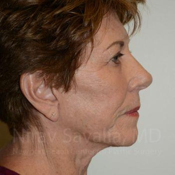 Facelift Gallery - Patient 1655791 - Image 4