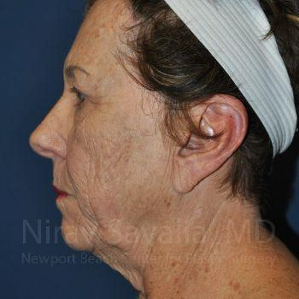 Facelift Gallery - Patient 1655791 - Image 5