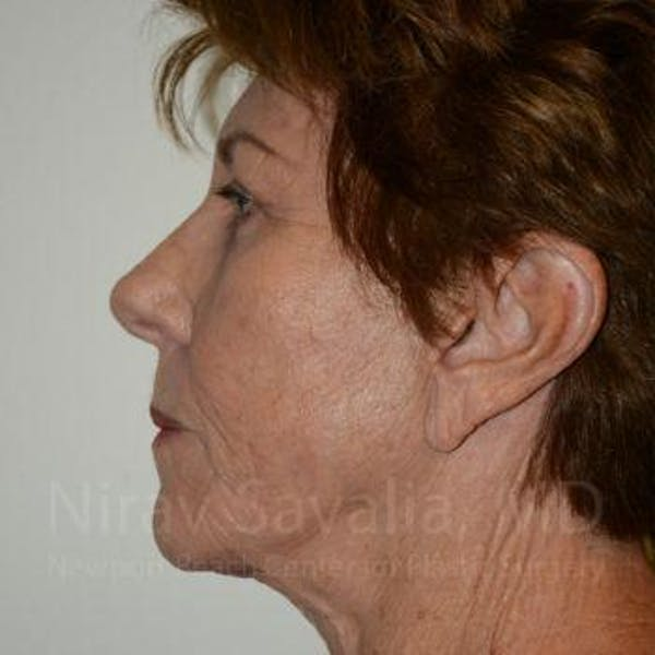 Facelift Gallery - Patient 1655791 - Image 6