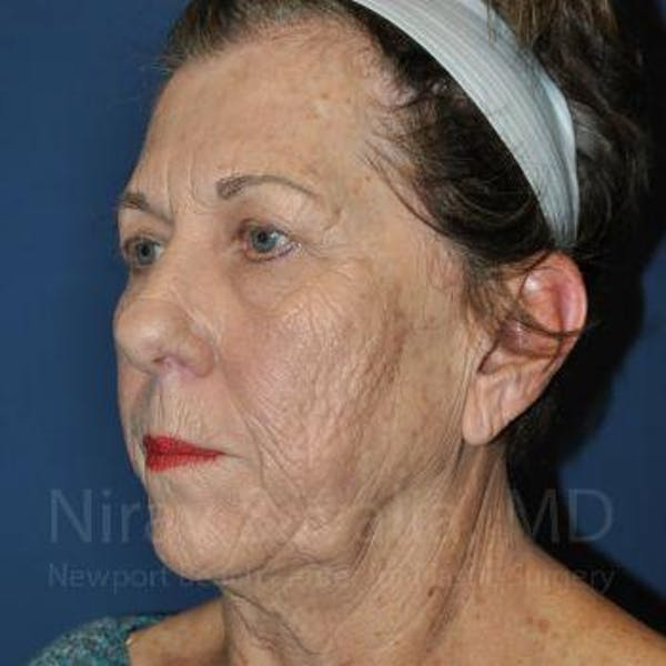 Facelift Gallery - Patient 1655791 - Image 7