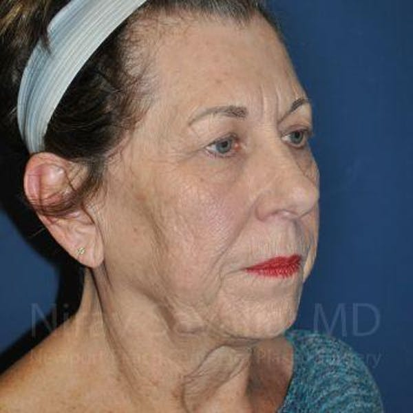 Facelift Gallery - Patient 1655791 - Image 9