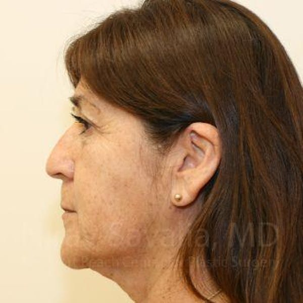 Eyelid Surgery Gallery - Patient 1655793 - Image 7